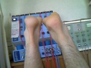 断裂3週間後の写真 右側が断裂した左足