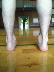 アキレス腱断裂8週間後の写真