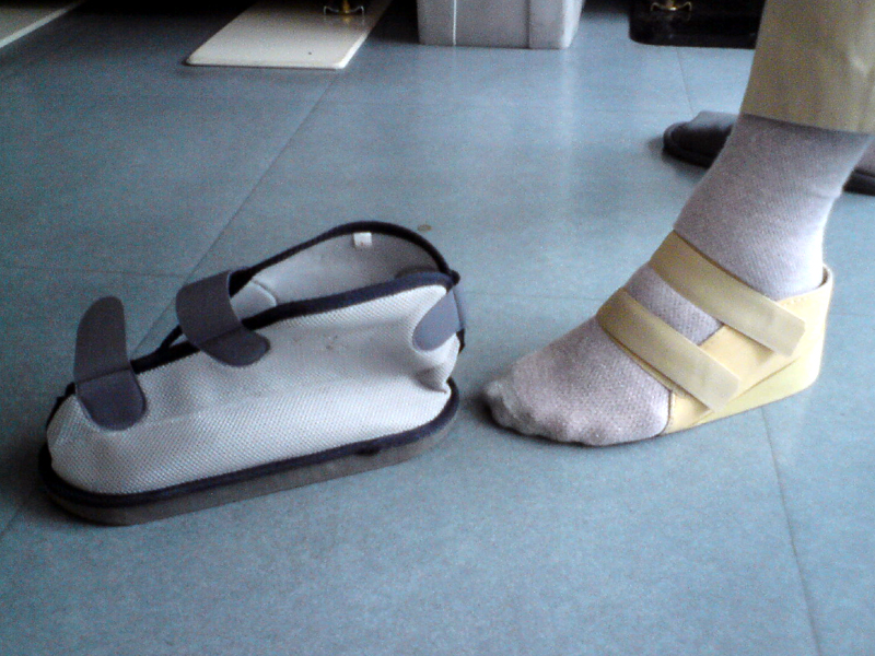 ギプスをしていても履ける靴、キャストブーツ