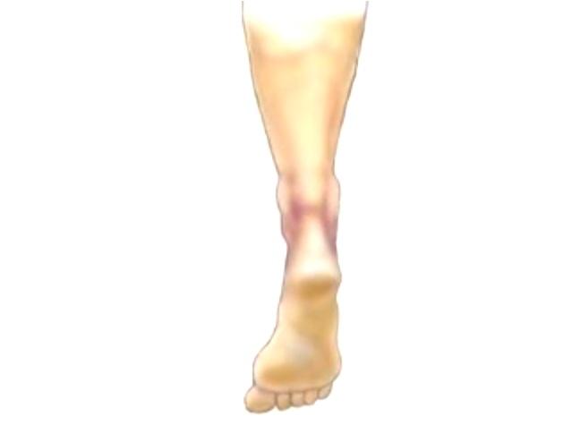 【アニメーション版】アキレス腱断裂の縫合手術動画