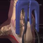 アキレス腱断裂縫合手術イメージ