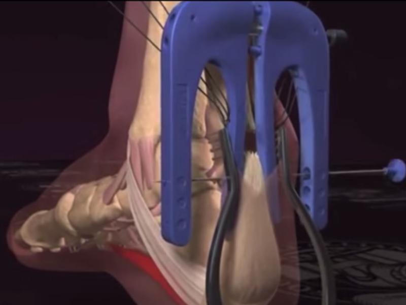 コービーのアキレス腱断裂の瞬間&手術アニメーション