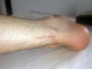 3月にアキレス腱を断裂したチームメイトのアキレス腱