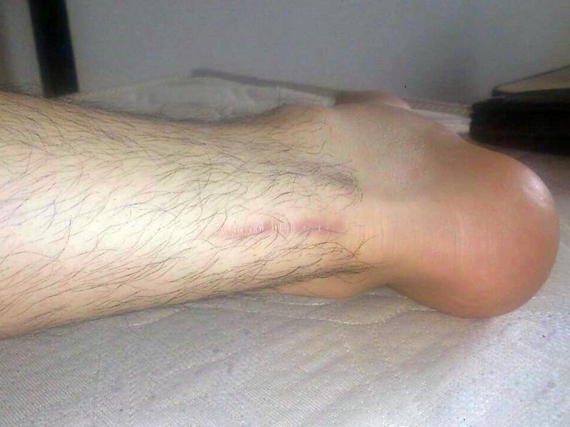 チームメイトがアキレス腱断裂から復活