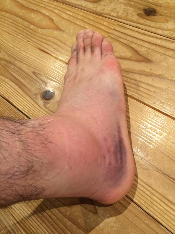 アキレス腱断裂から11年、盛り塩をさぼった結果・・・