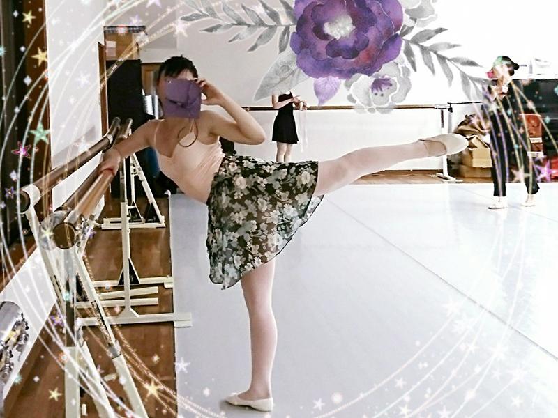 わずか3カ月でバレエレッスンに復帰!ばやしさん(女性)からのアキレス腱断裂復活報告