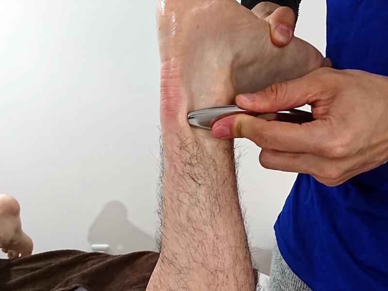 アキレス腱断裂の癒着を改善!?グラストンテクニックを受けてみた[その2]
