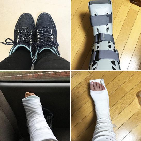 5カ月でテニス復帰!マサちゃんさん(女性)からのアキレス腱断裂復活報告