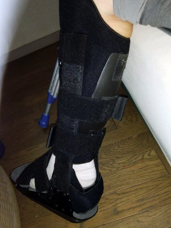 アキレス腱断裂は80歳を超えても手術無しでつながる!?86歳Sさんからの復活報告メッセージ
