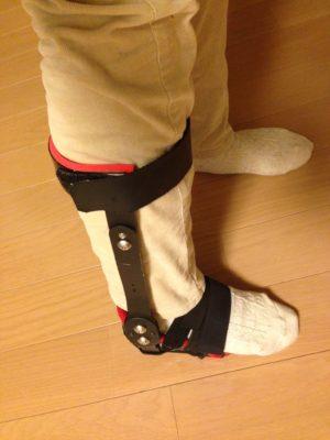 かばこさん[女性、?歳、東京都、手術]のアキレス腱断裂用装具