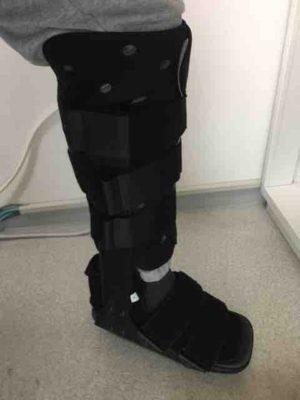 さとちゃんさん[男性、48歳、神奈川県、手術]のアキレス腱断裂用装具