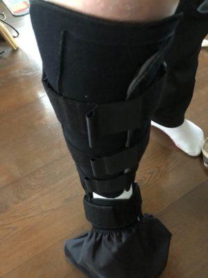 ひろみさん[女性、33歳、千葉県、保存]のアキレス腱断裂用装具