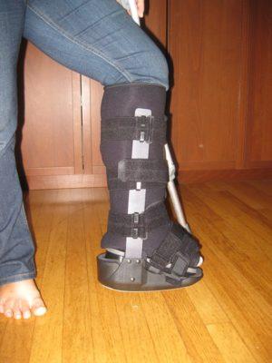 ココさん[女性、46歳、アメリカ、手術]のアキレス腱断裂用装具