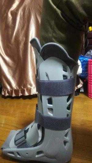ゴンさん[男性、55歳、千葉県、手術]のアキレス腱断裂用装具