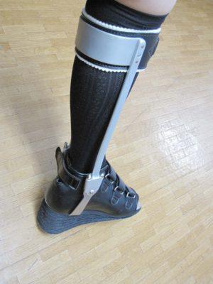 スージーさん[女性、44歳、大阪府、保存]のアキレス腱断裂用装具