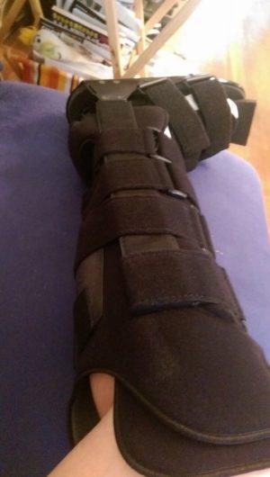 NYCさん[女性、42歳、アメリカ、保存]のアキレス腱断裂用装具