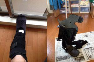 ikekatsuさん[男性、41歳、千葉県、保存]のアキレス腱断裂用装具
