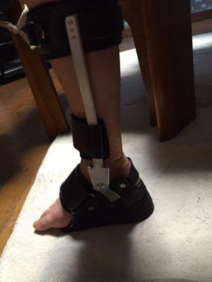 pippiさん[女性、55歳、千葉県、手術]のアキレス腱断裂用装具