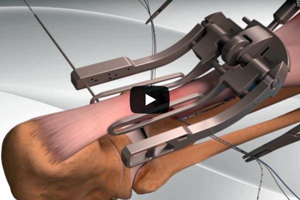アキレス腱断裂修復手術3Dアニメーション動画