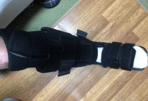 旬さん[男性、51歳、神奈川県、手術]のアキレス腱断裂用装具