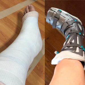 ayakoさん[女性、28歳、東京都、保存]のアキレス腱断裂用装具