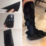 テツさん[男性、51歳、愛知県、手術]のアキレス腱断裂用装具